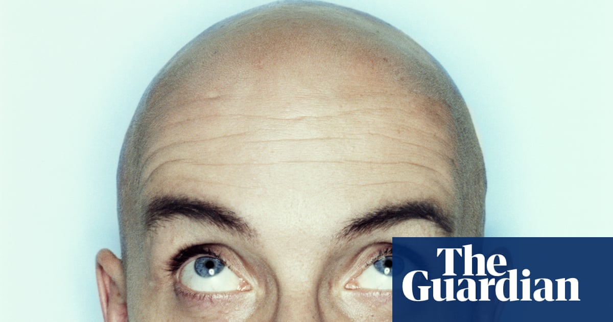 The Bald Truth About Ruxolitinib The New Miracle Cure For Hair