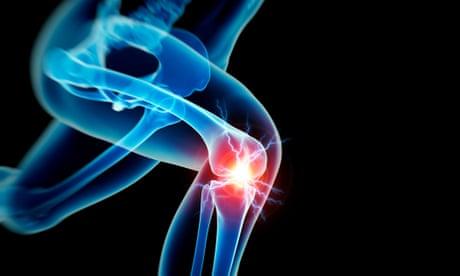 Knees, stretching and heel-striking: three running myths debunked