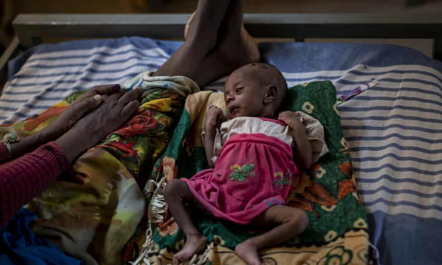 In this photo taken on 11 May a woman sits with her malnourished daughter in a medical clinic in the town of Abi Adi, in Tigray.