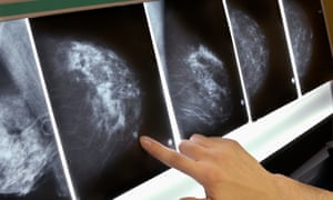 Woman pointing to area on mammogram x-ray