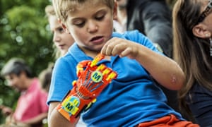 A young boy born with a right hand malformation examines his new 3D-printed hand
