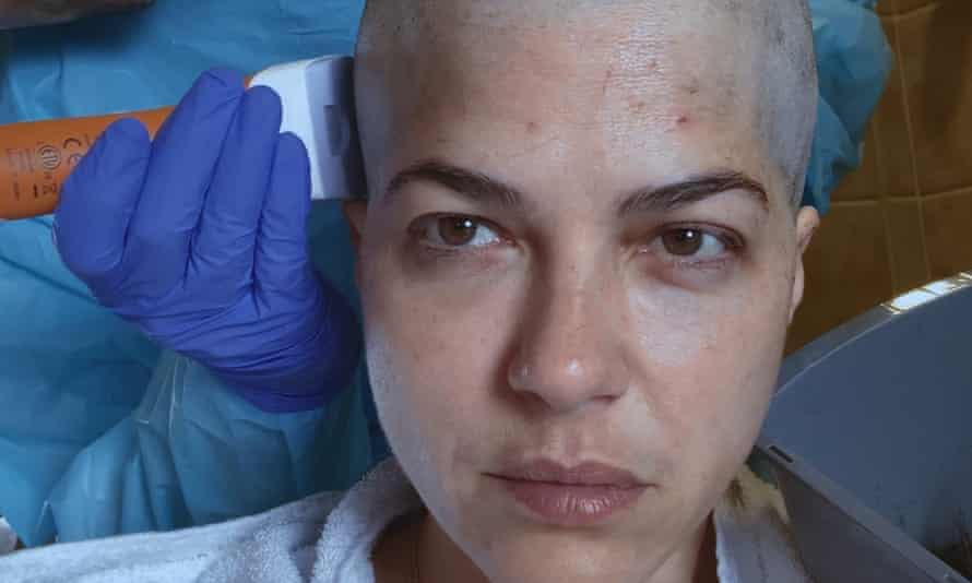 Close-up of Selma's face, bald, in a still from her documentary.
