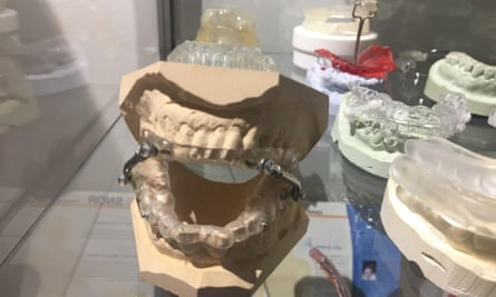 Jaw-advancing devices, which hold the tongue forward during sleep. These are usually made using a mould of the snorer's mouth and teeth.