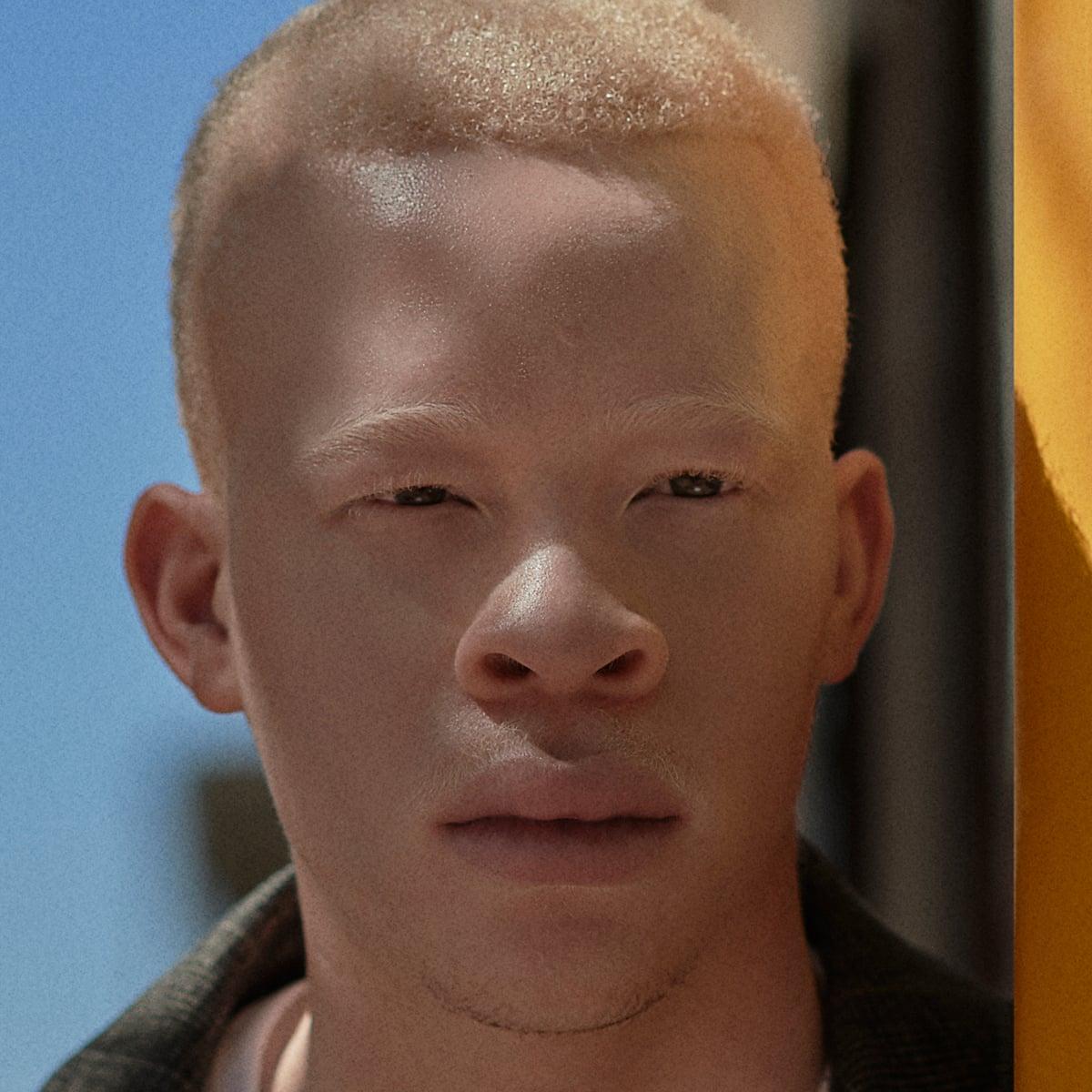 Sanele Junior Xaba I Take Pride In My Albinism Men S Fashion The Guardian