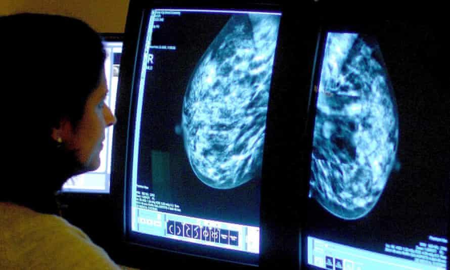 Consultant analysing a mammogram