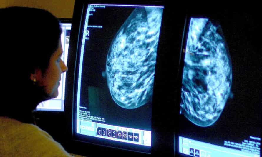 A consultant studies a mammogram. Kadcyla, made by Roche, can cost £90,000 a patient but patients in England can get it through the Cancer Drugs Fund.