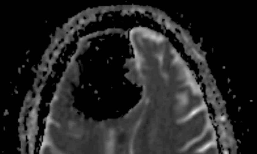 CT and MRI scans showed a 9cm cavity in the man's right frontal lobe.