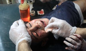 A wounded Syrian child receives medical treatment in eastern Ghouta