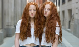 Identical DNA … Sophie and Emily from Twins by  Peter Zelewski.