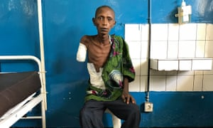 A 22-old rebel soldier, wounded and now dying, in a hospital in Masisi, DRC.