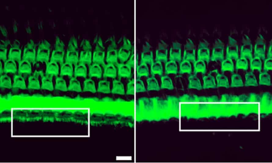 Treatment with a genome editing agent can preserve sound-detecting bristles in the inner ear of mice with genetic deafness (white box, left). Without the treatment, these bristles disappear (white box, right).