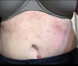 Rashes caused by uniforms that the crew at Delta was wearing.