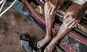 Refugees from the conflict in Yemen