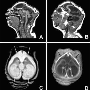 一些扫描显示婴儿大脑中有严重的小头畸形
