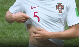 Portugal's Raphaël Guerreiro shows off marks left after a clash with a Moroccan player.