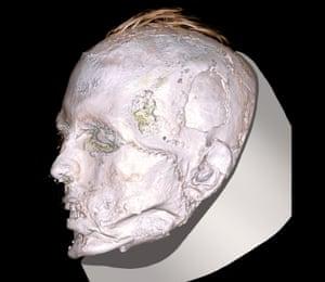 CT scan of Scythian warrior's face