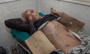 A patient affected by stomach cancer lays on a hospital bed waiting for an examination.