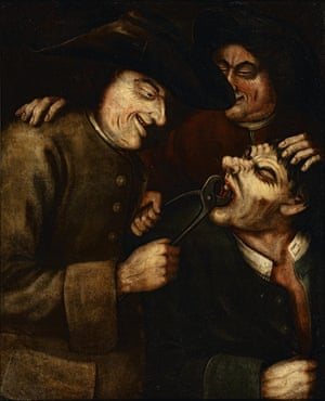 Gripping moment … a tooth being extracted by a blacksmith, in an 18th-century oil painting. The blacksmith-cum-dentist seems to be enjoying himself as he uses giant pincers to remove a tooth – or teeth – from the mouth of a distraught patient.