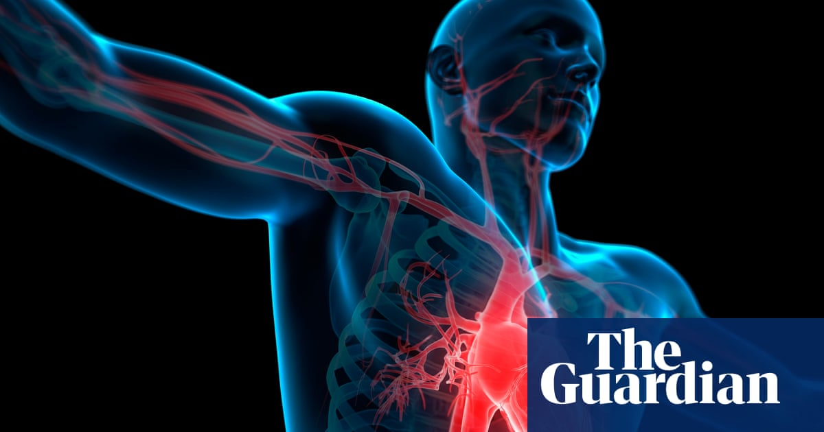 Four in five adults at risk of early death, heart-age test shows