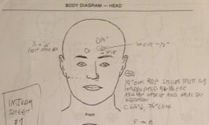William Chapman autopsy report