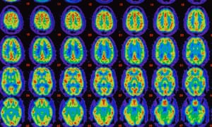 Pet scans comparing brains with Alzheimer's with healthy brains. The researchers used PET scans to study the brains of 32 people with early Alzheimer's.