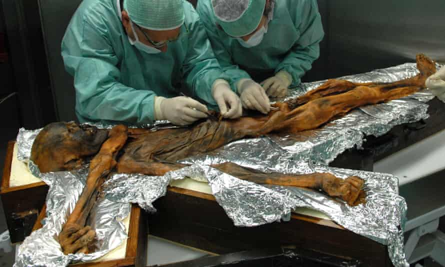 Scientists sample the stomach of Ötzi the iceman, who died in eastern Alps 5,300 years ago.