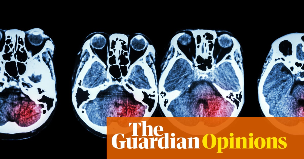 My husband's stroke showed me the best and worst of the NHS