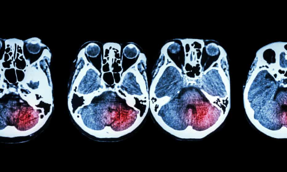A CT scan of brain and base of skull after a stroke.