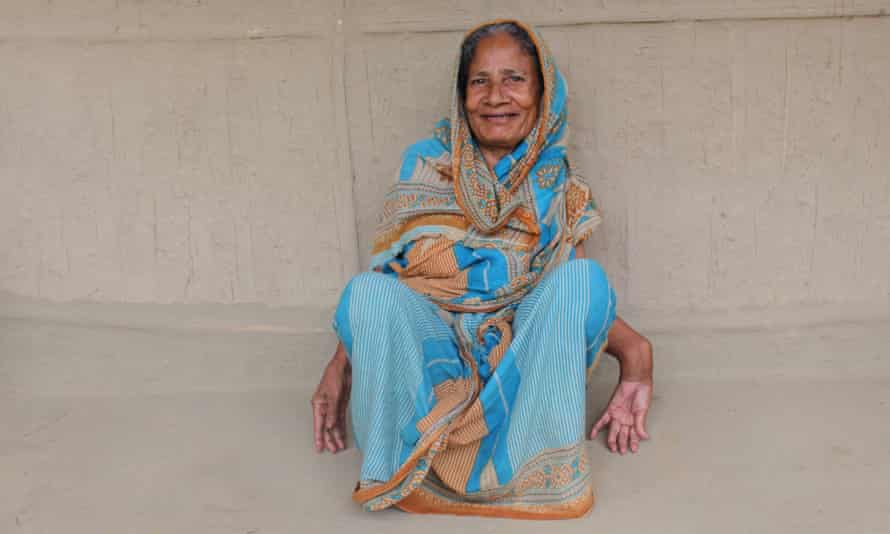Nur Jahan Begum has skeletal fluorosis. Her forearms are bent just above the wrists, meaning that she cannot feed herself.