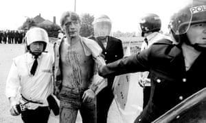 An arrested and injured miner being taken to an ambulance during the 1984 'Battle of Orgreave'.