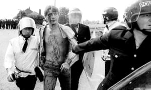 An arrested and injured miner being taken to an ambulance during riots with police in 1984