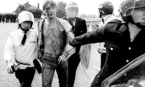 An arrested and injured miner being taken to an ambulance during the industrial action at Orgreave
