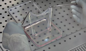 A sheet of the laboratory-grown, genetically modified skin.