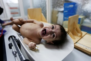 A malnourished girl cries as she is being weighed at a malnutrition treatment center in Sana'a.