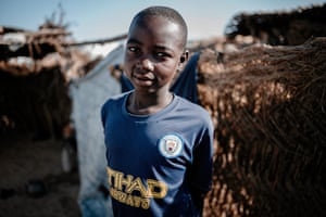 Bakura, 14, survived a landmine explosion that killed his young relative Mustapha.