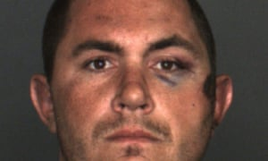 Pusok's booking photo shows his bruises.