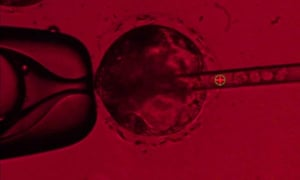 Human stem cells  being injected into a pig embryo