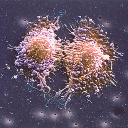 A scanning electron micrograph image of two prostate cancer cells in the final stage of cell division.