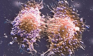 Two prostate cancer cells in the final stage of cell division.