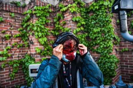 NBC News journalist Ed Ou bleeds after police started firing tear gas and rubber bullets near the 5th police precinct following a demonstration to call for justice for George Floyd, a black man who died while in custody of the Minneapolis police, on May 30, 2020 in Minneapolis, Minnesota.