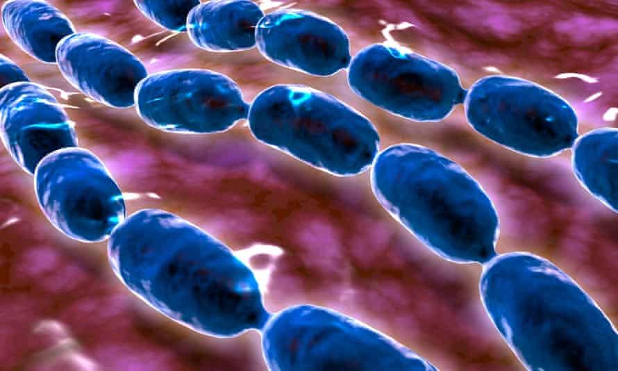 Microscopic view of bacterial pneumonia.