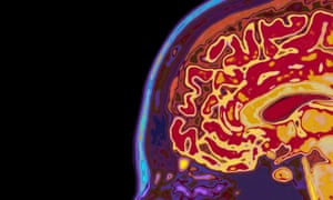 MRI Scan Of Head Showing BrainConcept image to illustrate the mind