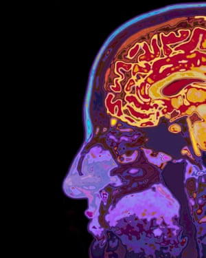 Research suggests between 20 and 30 genes are involved in predisposing people to Alzheimer's.