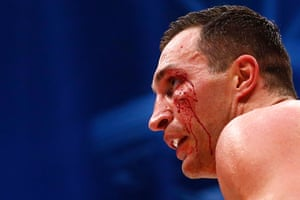 After a clash of heads in round five Klitschko's face is cut