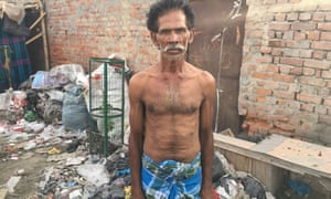 A resident of the Rohini slum that suffered its own fire the day after the one that struck Mansarovar Park.