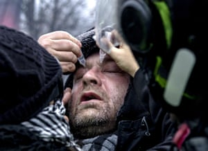 A man receives treatment on his eyes for the effects of teargas.
