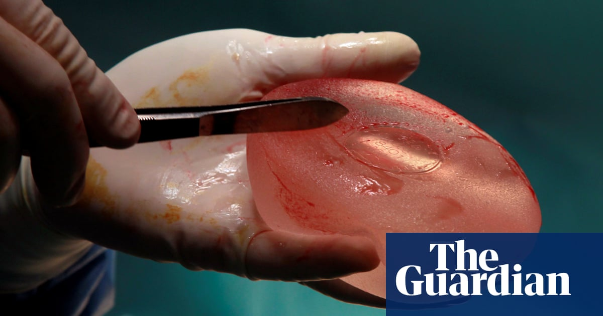 Breast implant victims should get payouts, Paris court rules