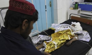 An injured boy receives treatment at a hospital after an airstrike in Helmand province, in southern Afghanistan.
