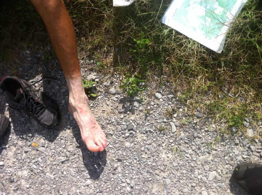 Nimblewill Nomad's foot after hiking. He had his nails surgically removed.