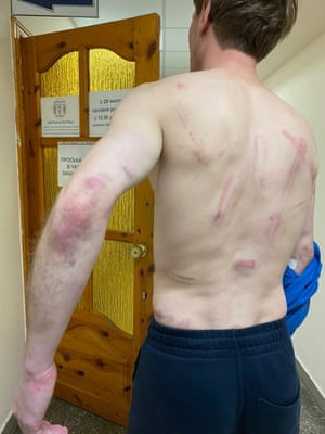 Pavel Daroshka, 32, was arrested and beaten by riot police.